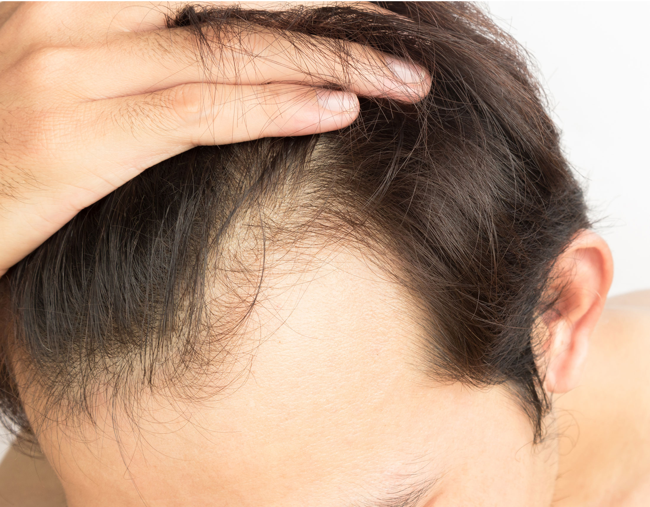 hair-problems-list