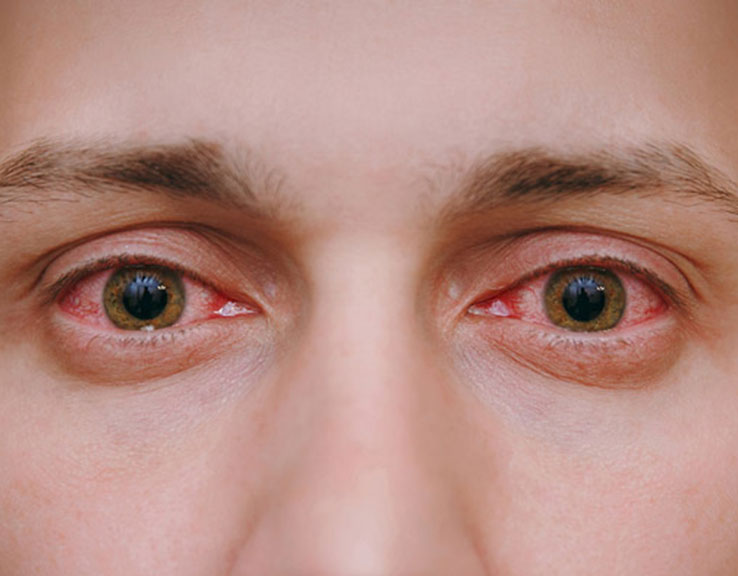 Causes of red eye