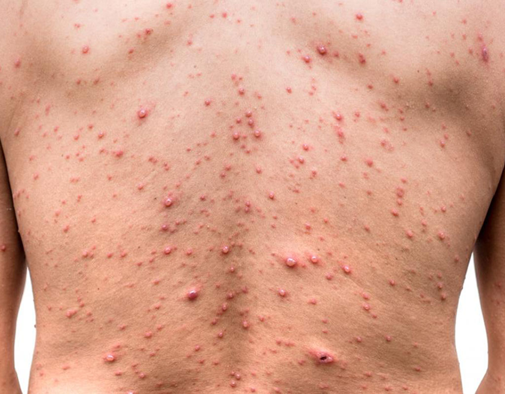 Chicken pox treatment