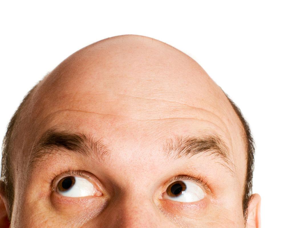 Solution for baldness