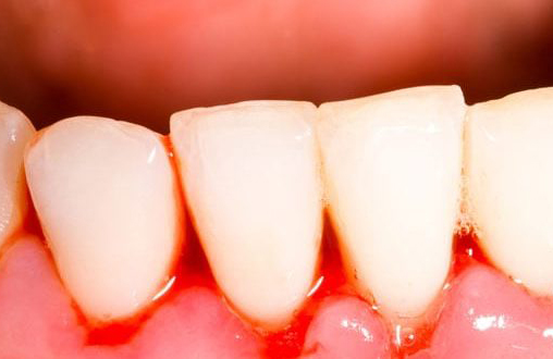 Bleeding gums reasons in Tamil