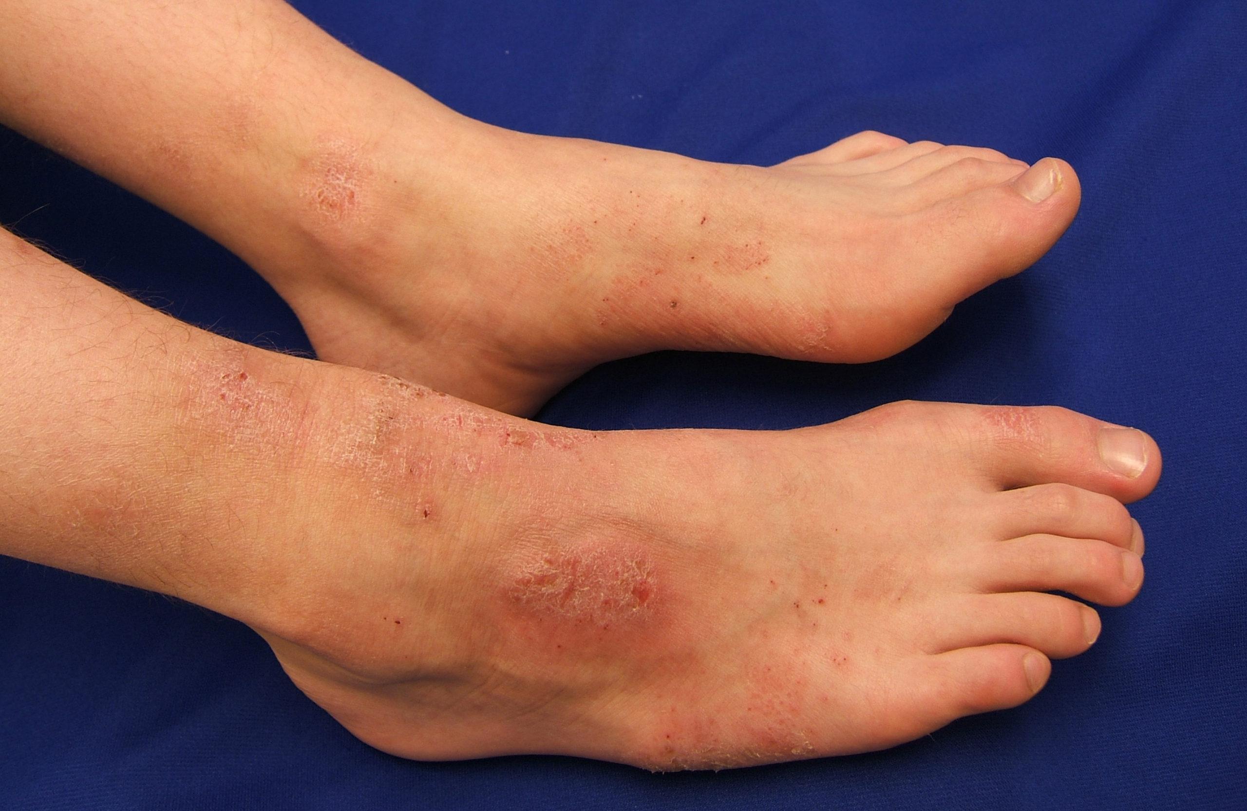 Diabetic foot irritation treatment in Tamil