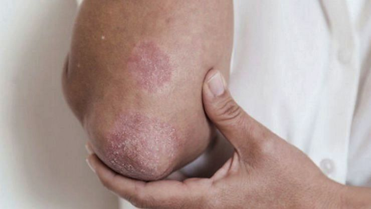 psoriasis home remedy in tamil