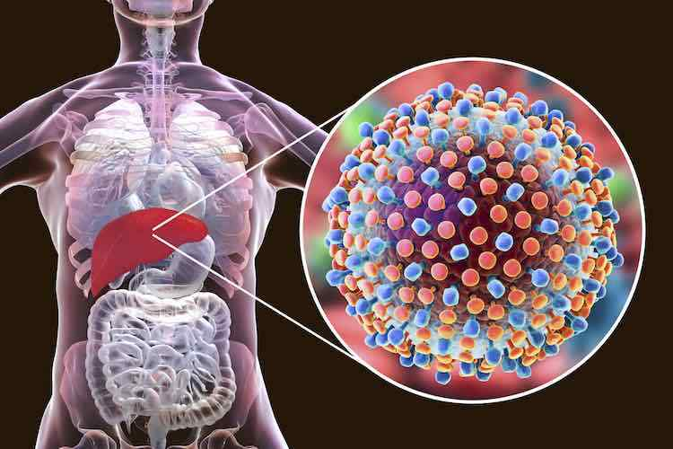 hepatitis ayurvedic treatment in tamil