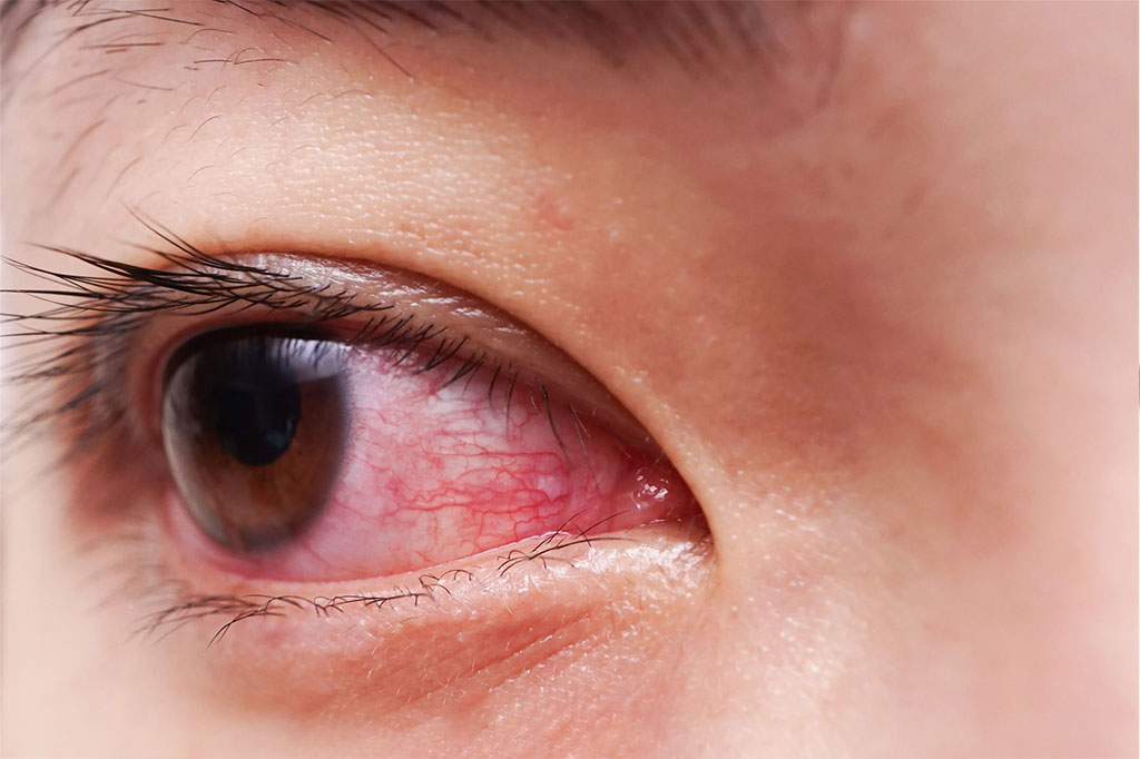 redness in eyes