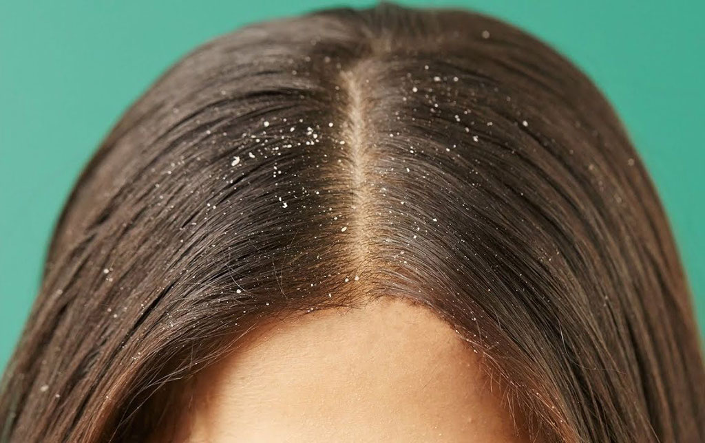 dandruff causes in tamil
