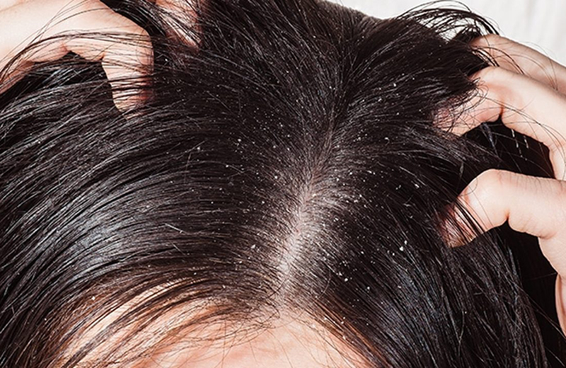 dandruff home remedies in Tamil